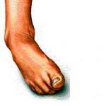 足首のねんざ